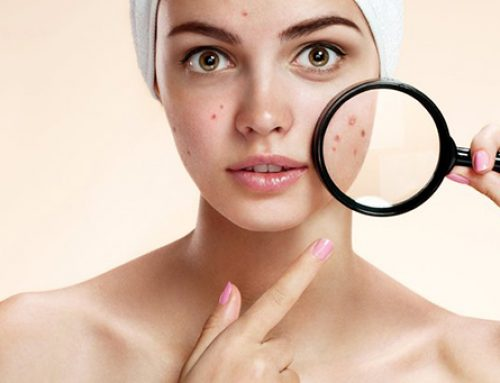 Pimples: the Breakout Breakdown